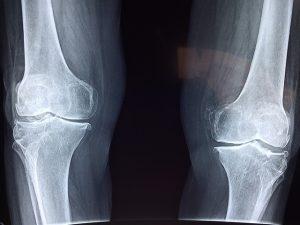 Aktuelles - Osteoporose - Stein Apotheke - Köln-Lövenich